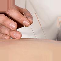 Akupunktur-NFMA