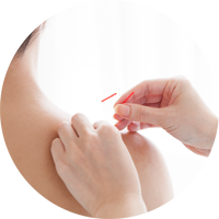 Akupunktur-utdanning